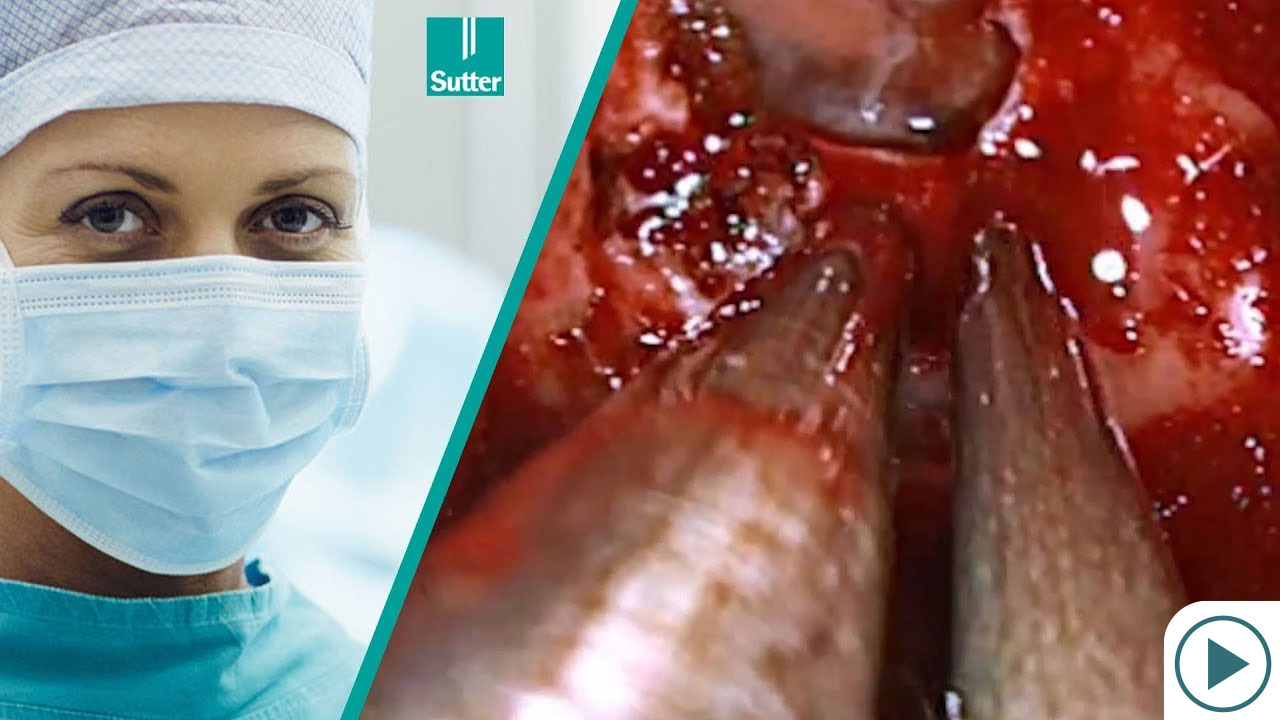 Transsphenoidal Surgery of a Suprasellar Tumor Using Calvian endo-pen®